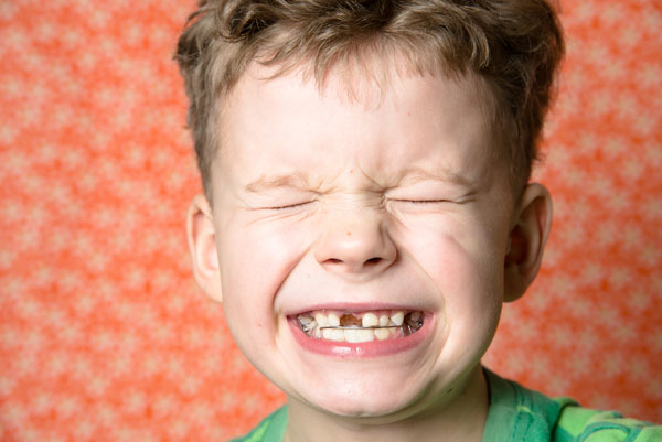 child boy showing his missing tooth in pain 3